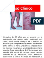 Caso Clinico Purpura