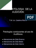 FISIOPATOLOGIA  DE LA AUDICIÓN