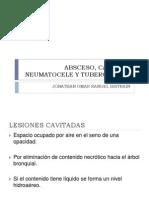 Absceso, Caverna y Neumatocele