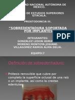 sobredentaduras SOBRE IMPLANTES