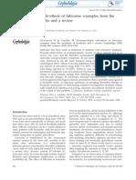 Neuropsychiatric side-effects of lidocaine