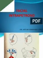 Facial Intrapetroso