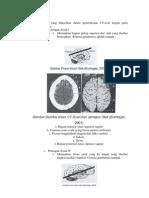 Radiologi Ct Scan