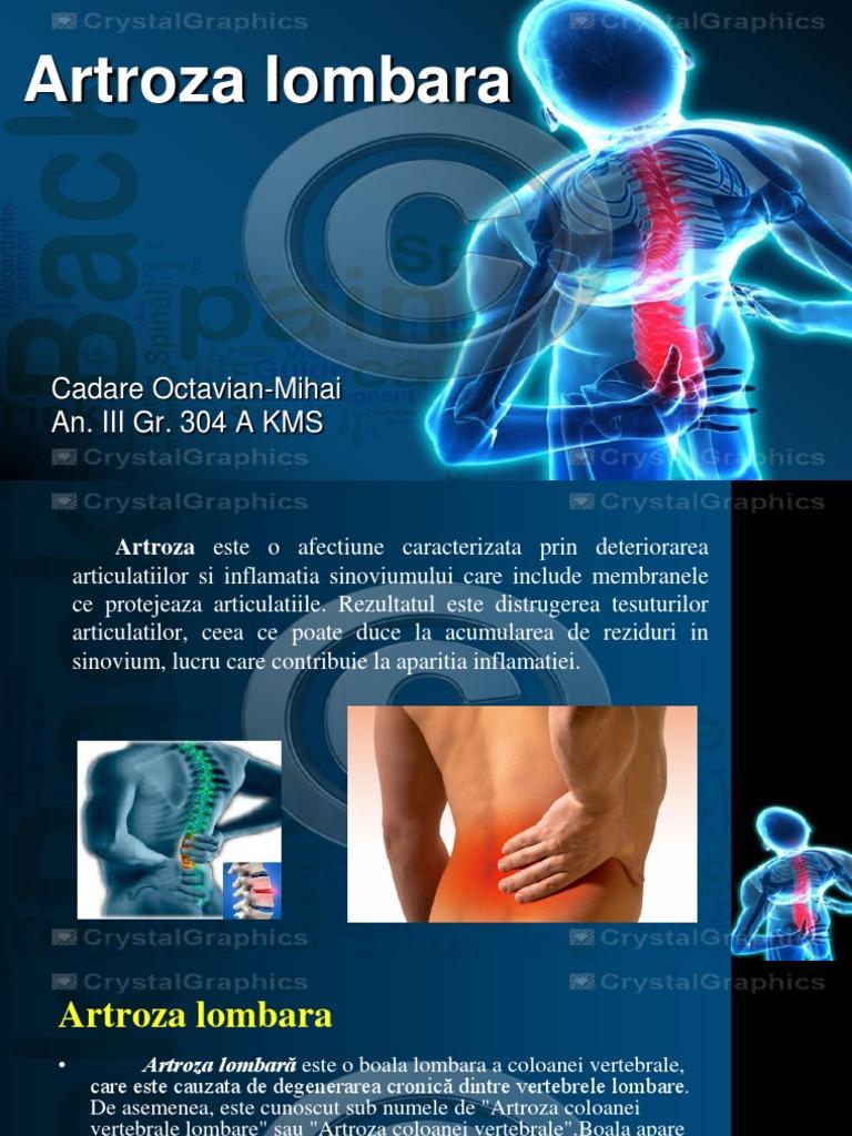 osteoartrita lombara