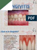 Gingivitis Jornada