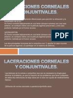 Laceraciones Corneales y Conjuntivales