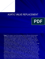 Aortic Valve Replacement