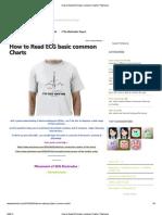 How to Read ECG Basic Common Charts _ Phartoonz