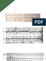 Test ECG Ventriculaire
