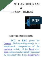 Dysrhythmia s