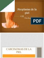 Carcinomas de Piel