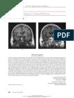 Pituitary Apoplexy - Image of NEJM