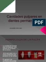 CAVIDADES-PULPARES