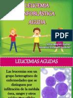 LEUCEMIA LINFOBLASTICA20131.pptx