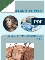 TRANSPLANTE DE PELE apresentaçao pronta