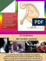 Lesiones en La Medula Espinal