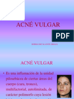 2.2.Acne Vulgar