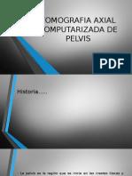 Tomografia Axial Computarizada de Pelvis