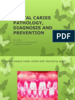 Dental Caries Pathology, Diagnosis and Prevention