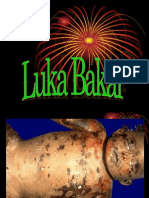 Luka Bakar Forensik