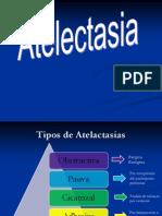 ATELACTASIA IMAGEN