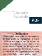 Carcinoma Ba So Celular