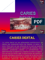 Caries Dental
