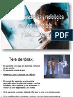 4.2  Anatomia descriptiva y  radiológica en tele y lateral de  tórax