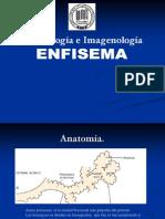 4.8 Enfisema