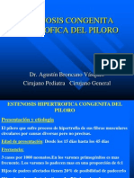Estenosis Congenita Hipetrofica Del Piloro i