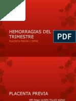 Placenta Previa y Dppni Expo