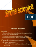 Sarcina Ectopica Mola