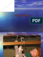 Tractions