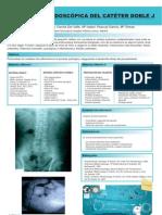 Colocacion Endoscopica Cateter Doble-j
