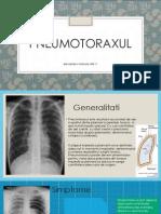 pneumotorax, chirurgie, generalitati