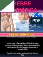 Fiebre Reumatica 2013