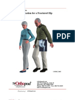Compression Fixation for a Fractured Hip
