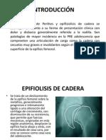 Epifiolisis de Cadera
