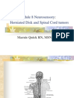 Neurosensory HNP,Spinal Tumors