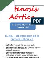 ESTENOSIS AORTICA PRESENTARCION.