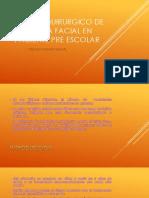 Manejo Quirurgico de Trauma Facial en Paciente Pre