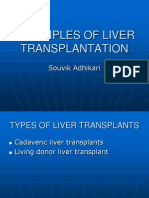 Principles of Liver Transplantation