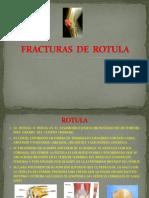 Fx de Rotula
