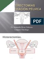 Histerectomías (1)
