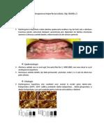 Dentinogenezis Imperfecta Tip 2