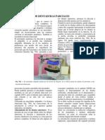 Articulacion de Dentaduras Parciales