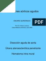 21 Sindromes Aorticos Agudos Clase Cti