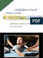 Ppt Cerebral Palsy