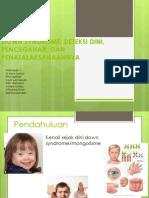 Down Syndromefix