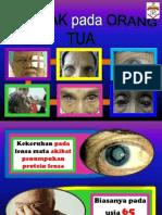 flipchart katarak.pptx